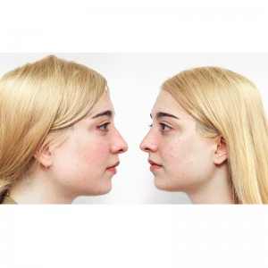 Face to face with Amalia Ulman and Dr. Fredric Brandt